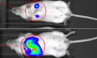 Newly Discovered Enzyme Controls Metastasis in Breast Cancer