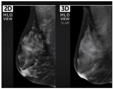 microcalcification detection in digital tomosynthesis mammography