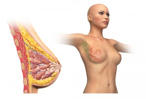 Lymphatic Cells in breast cancer