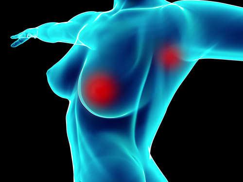 Breast Cancer Survival Rates No Better After Bilateral Mastectomy