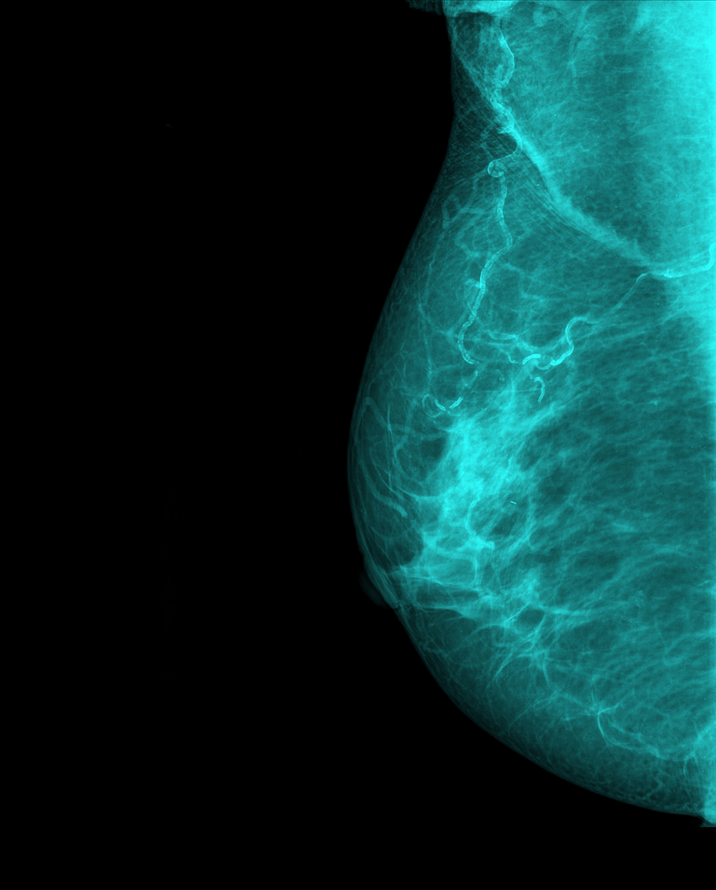Developing a Test to Estimate Metastatic Probability of Breast Cancer