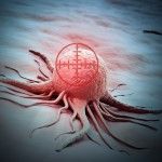 Drug combo shrinks HER2 positive breast cancers