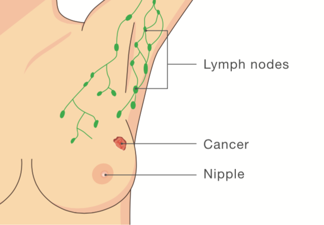 Brest nipple retraction breast cancer