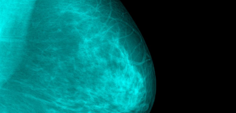 Clinical Trial of Tamoxifen-based Gel in Reducing Breast Density Recruiting in US, EU