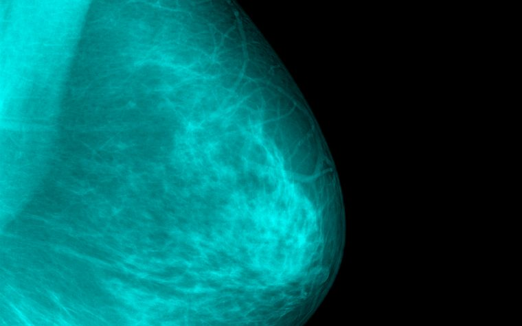 dense breasts and tamoxifen