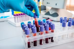 Quick, Less Invasive Blood Test May Detect Breast Cancer Earlier
