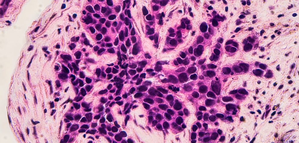 Osteoporosis Treatment May Reduce Breast Cancer Recurrence and Metastasis, Study Finds