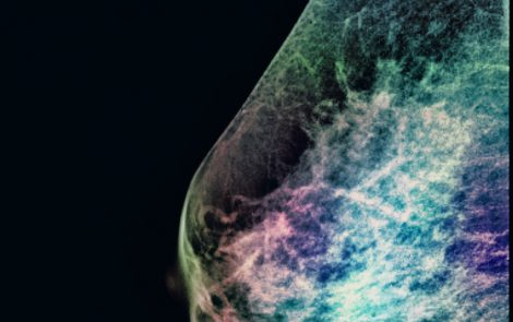 New Technique Can Spot Breast Tumors Other Methods Might Miss