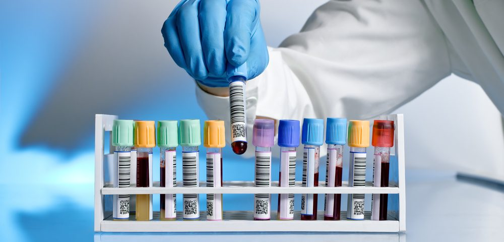 Blood Test for Breast Cancer Possible by Looking at Isotopes, Study Reports