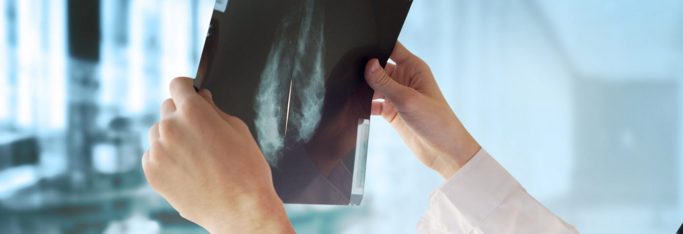 AI Matches Radiologists' Skill at Detecting Breast Cancer on Mammograms