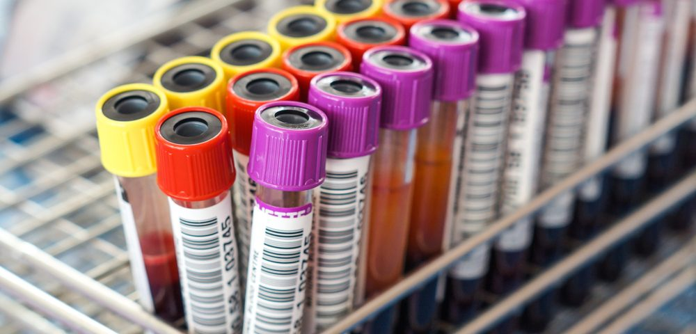Cancer Cell Component Finding Could Lead to Diagnostic Blood Test