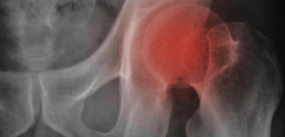 Breast Cancer and Fractures Study Prompts Revision in Bone-loss-prevention Guidelines