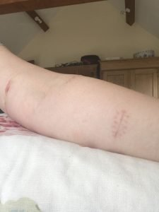 left arm, 14 days post-surgery