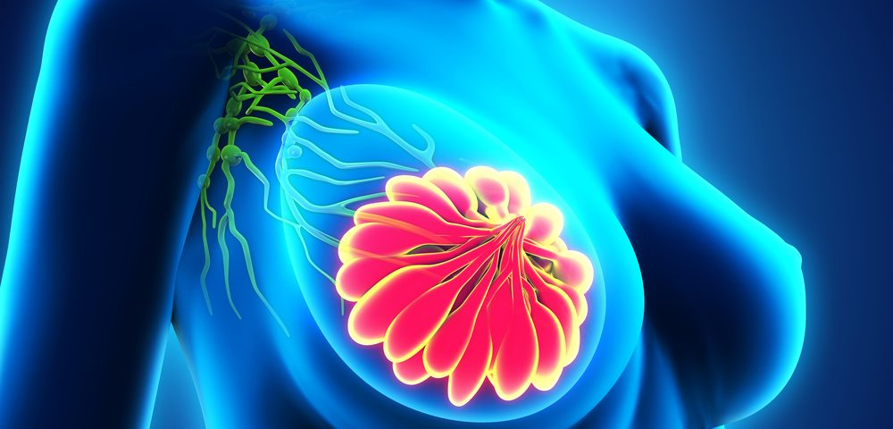 Radiation to Lymph Nodes in Chest Seen to Improve Breast Cancer Outcomes at 15 Years with Little Added Risk