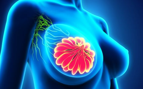 Imagio Imaging System for Breast Cancer Diagnosis Approved by FDA