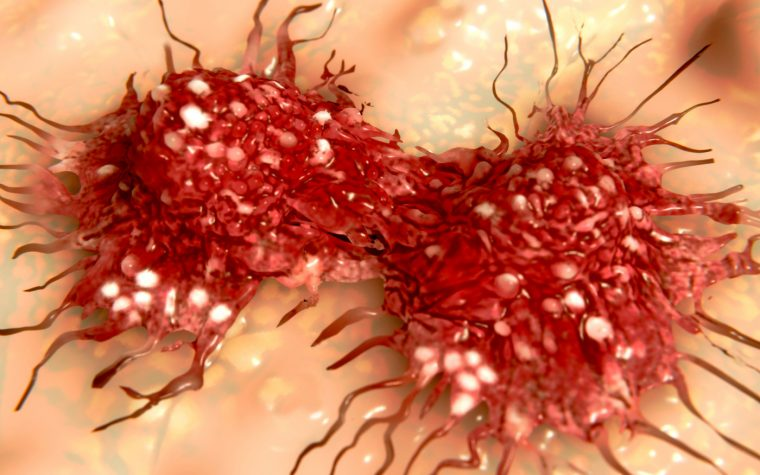 Early Cancer Metastasis Discovery May Allow for Better Treatment Decisions