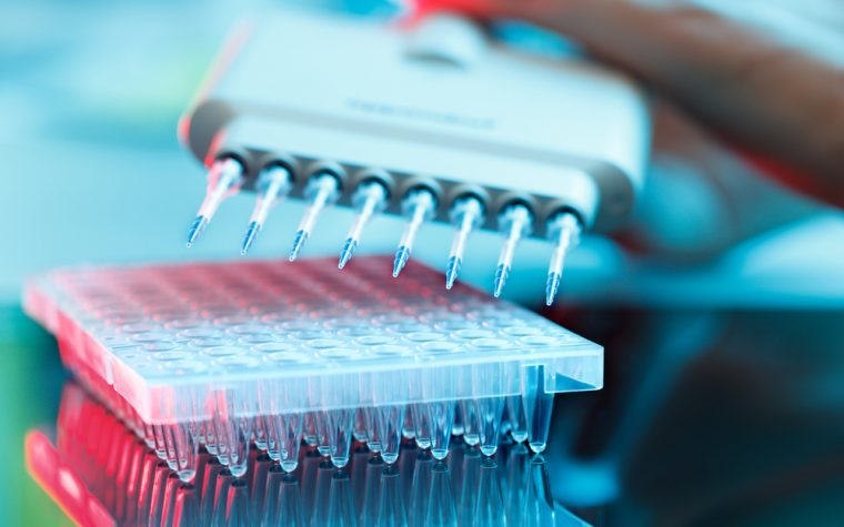 Curie Institute Is Partnering with Agendia on Breast Cancer Test Processing Study