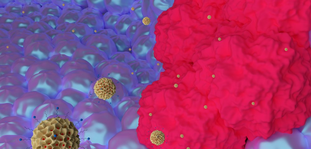 New Breast Cancer Research Tool Looks at Tumor Biology, Predicts Treatment Response