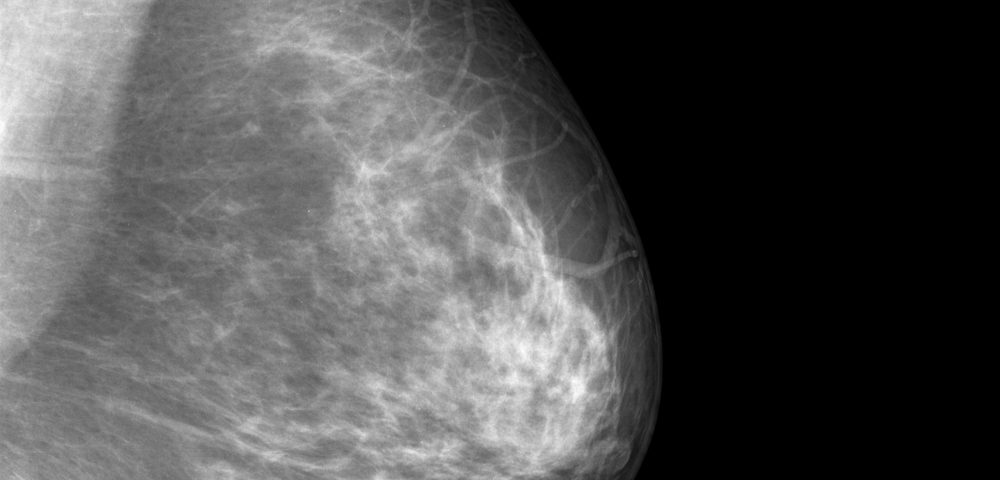 New Imaging Approach Scans Entire Breast and Finds Tumors in Seconds