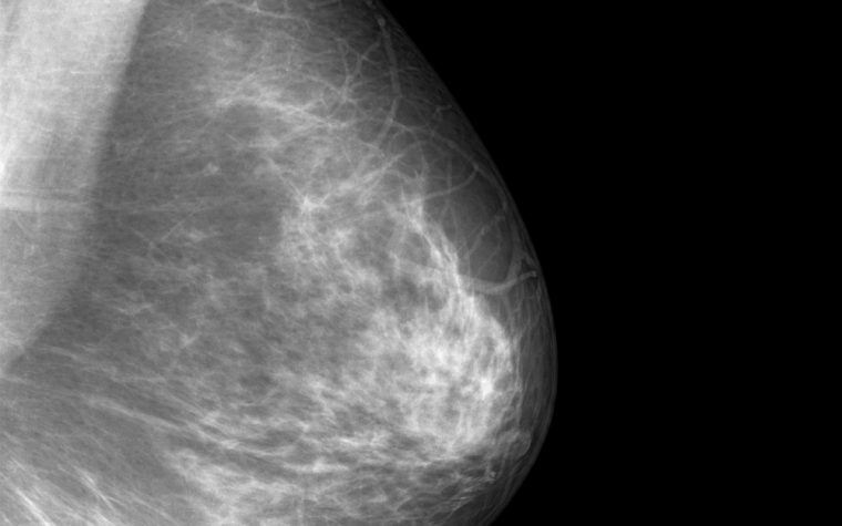 breast cancer imaging method