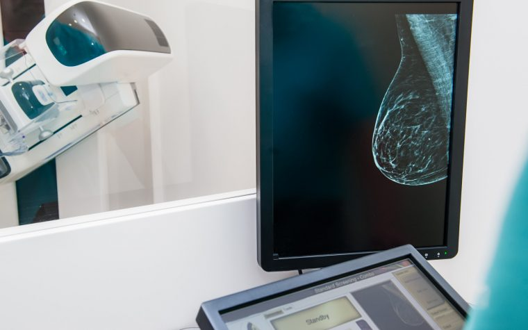 FDA mammography policies