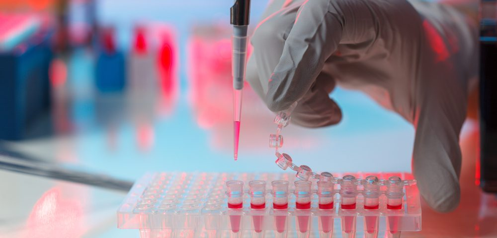 Devyser's Gene Screening Test for Breast, Ovarian Cancers Approved in Europe